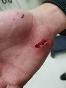 כף ידו של רוכב האופניים (צילום: דוברות טרם)