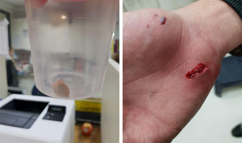 כף ידו של רוכב האופניים, האבן שהוצאה (צילום: דוברות טרם)