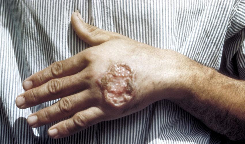 שושנת יריחו (צילום: מתוך ויקיפדיה,CDC Dr. D.S. Martin)