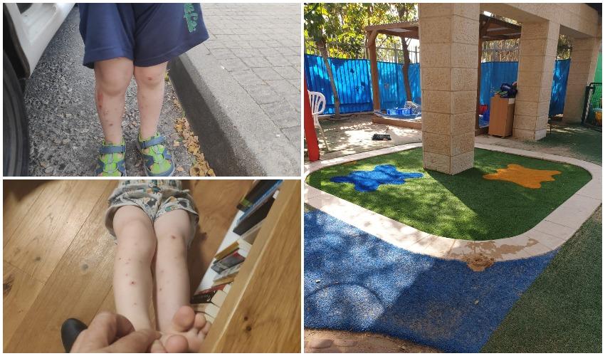 הדשא הסינתטי בגן אלה, ילדים בגן אלון שנעקצו מיתושים השבוע (צילומים: הורי גן אלון, פרטי)